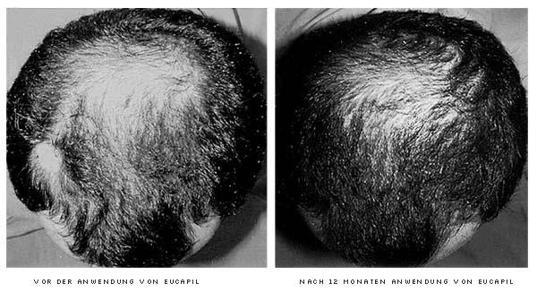 Fotos von Probanden, die an der 12-monatigen doppelblinden Eucapil® (Fluridil) Studie, durchgeführt an der Universitätsklinik Olomouc (Tschechische Republik), teilgenommen haben.